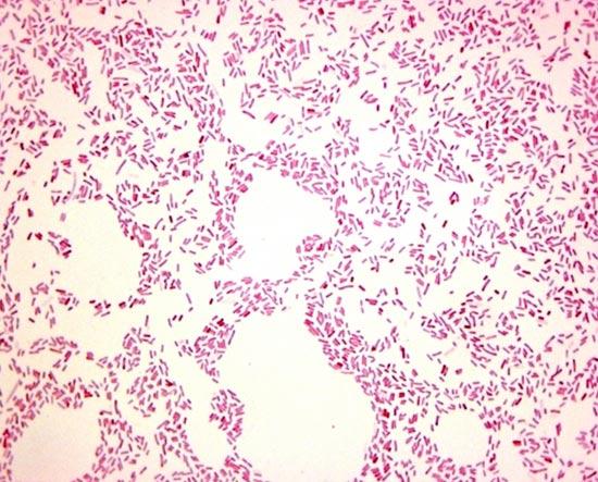 микроскопия мазка