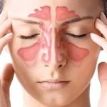 Все о гайморите: от симптомов и признаков заболевания до его профилактики