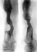 посттравматический остеомиелит
