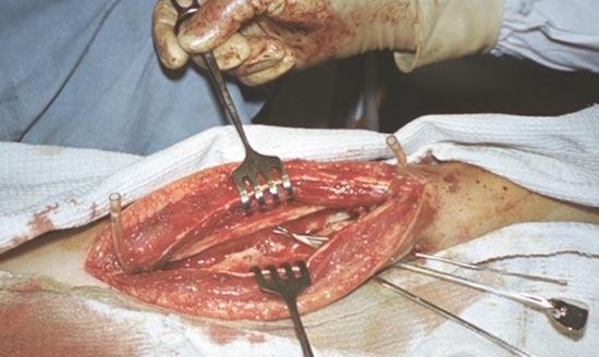 трепанация бедренной кости