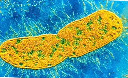 клебсиелла (бактерия)
