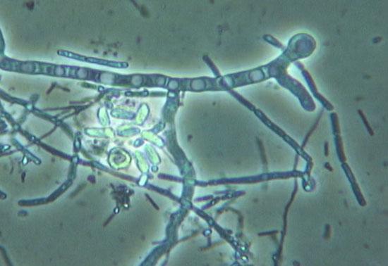 мицелий гриба