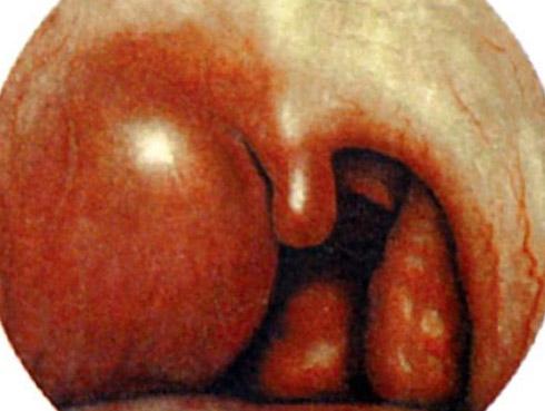 абсцесс в горле - результат воспаления
