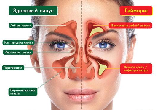расположение придаточных пазух носа