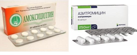 Амоксициллин и Азитромицин