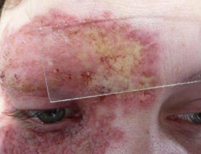 simptomy-tuberkuleza-4