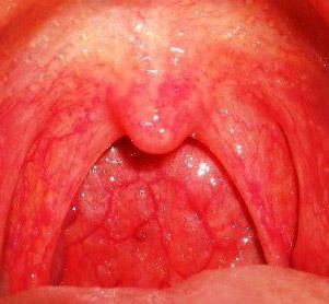острая катаральная ангина