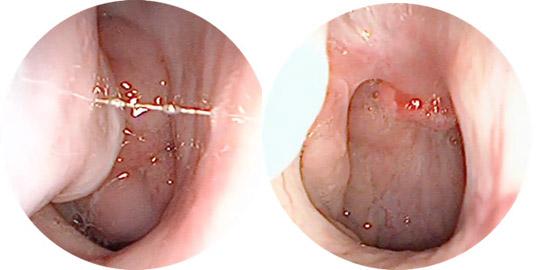 аденоиды до и после операции