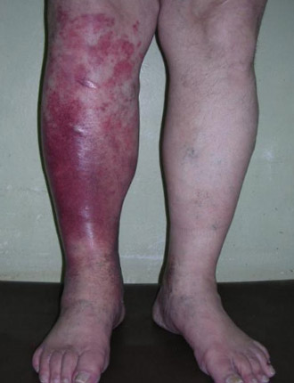 рожистое воспаление голени