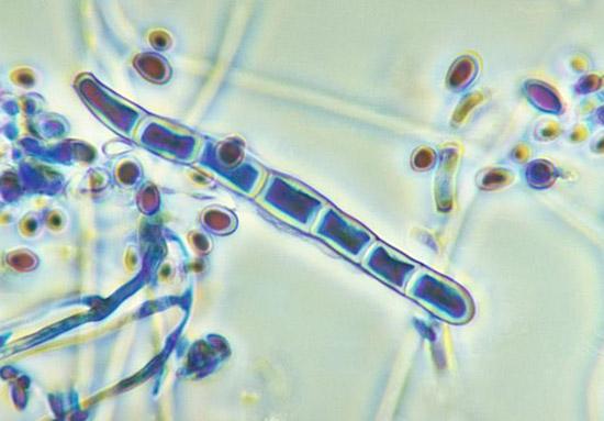 грибки Trichophyton rubrum (красный трихофитон)