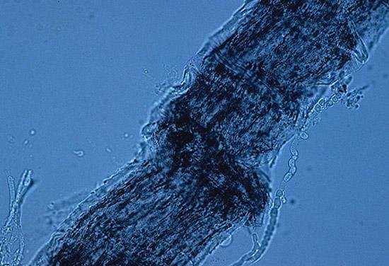 грибки рода микроспорум (Microsporum)