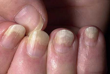 заболевание ногтей, вызванное грибками Trichophyton rubrum (онихолитический тип)