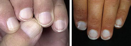 белые ногти