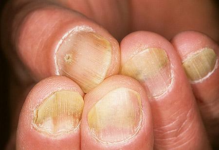 эритематозо-пятнистая форма псориаза