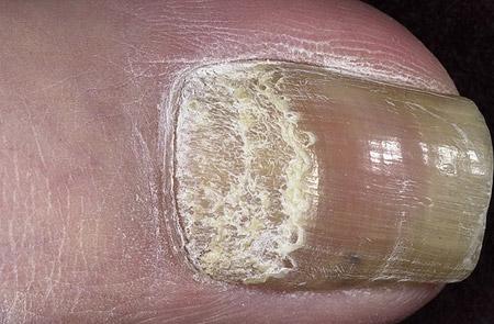 заболевание ногтей при псориазе