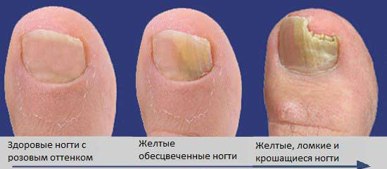 стадии онихомикоза