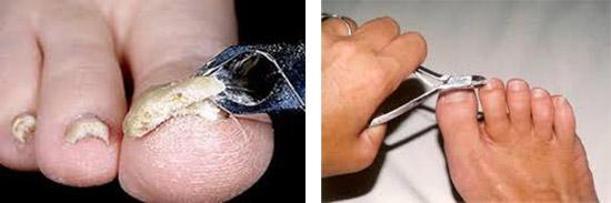 снятие поврежденных краевых участков ногтя