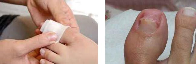 применение каратолитической массы и пластыря