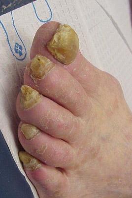 полностью разрушенные ногти