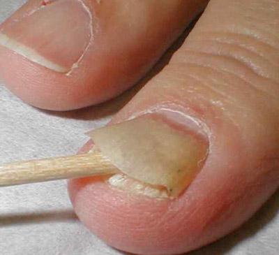 грибок ногтей паразиты в организме