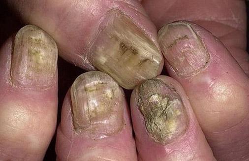 Страшные ногти на руках