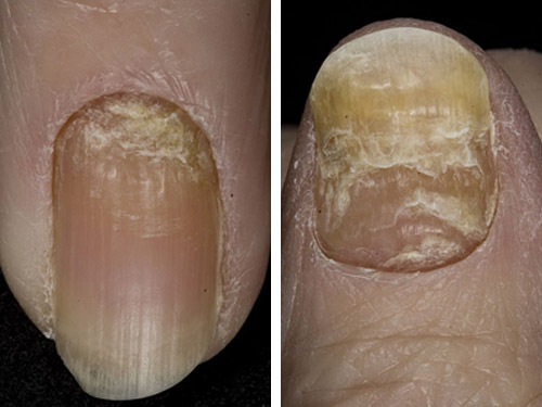 ногти после травмы