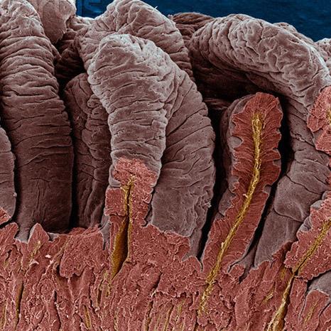 стенка тонкого кишечника в разрезе