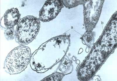 ацидофильная палочка разрушает патогенные бактерии