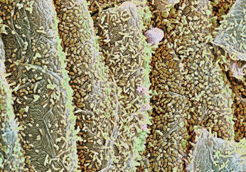 кишечная микрофлора