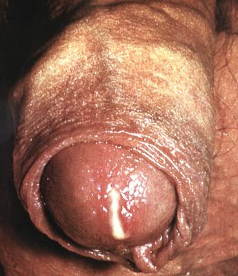 острый гонококковый уретрит