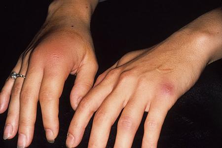 гонорейный артрит