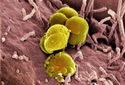 гонококки (Neisseria gonorrhoeae)