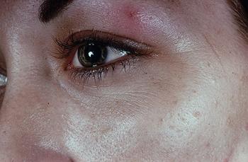 поражение кожных покровов при гонорее