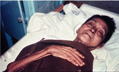 крайняя степень обезвоживания при холере