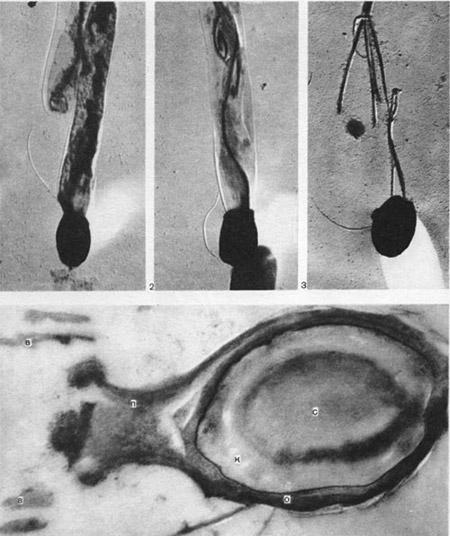 стадии спорообразования бактерий
