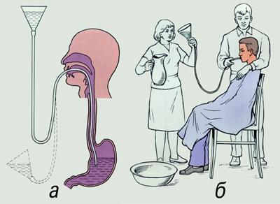 промывания желудка с помощью зонда при ботулизме