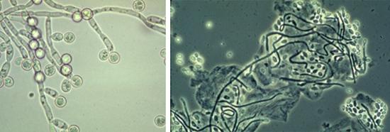 грибы рода Candida