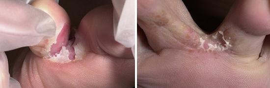 фото молочница на половых губах