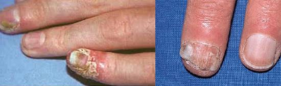 поражение ногтей и околоногтевых валиков