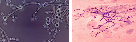 вид мицелия грибов Candida