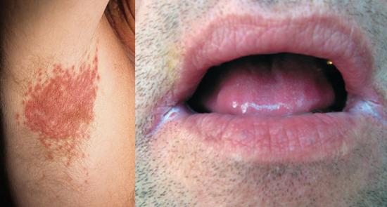 поражение молочницей подмышечных складок и уголков рта
