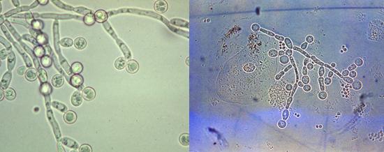 грибы рода кандида