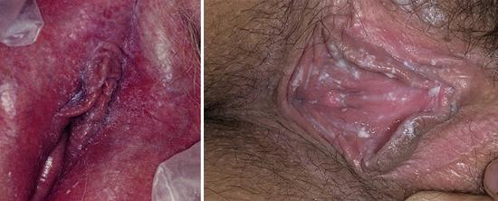 классические симптомы молочницы у женщины