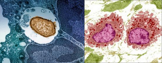 бактерия поглощена макрофагом