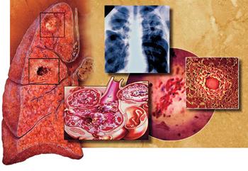 туберкулезные бактерии разрушают ткань легких