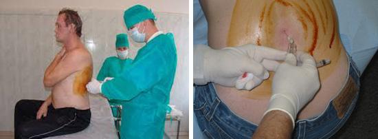 плевральная пункция и пункция спинного мозга