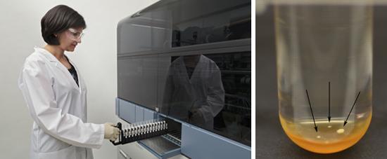 автоматизированная система BACTEC MGIT для выделения туберкулезных палочек