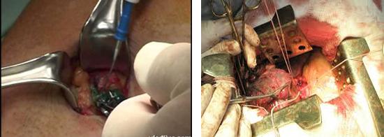 открытая биопсия лимфоузлов