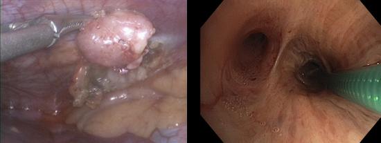 торакоскопия и трансбронхиальная биопсия легких