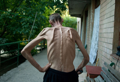 последняя стадия туберкулеза